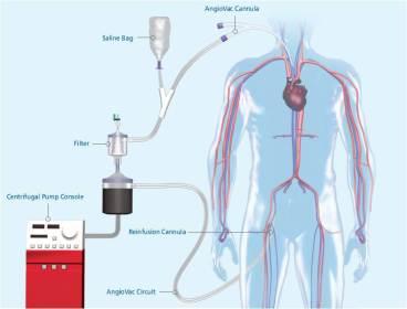 Angiovac-vortex-system