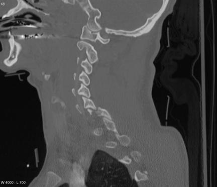 fracture-dislocation-c67-3